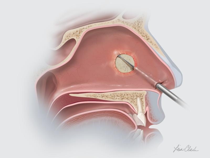 Sinonasal Nasal Septal Perforation Product Page Image