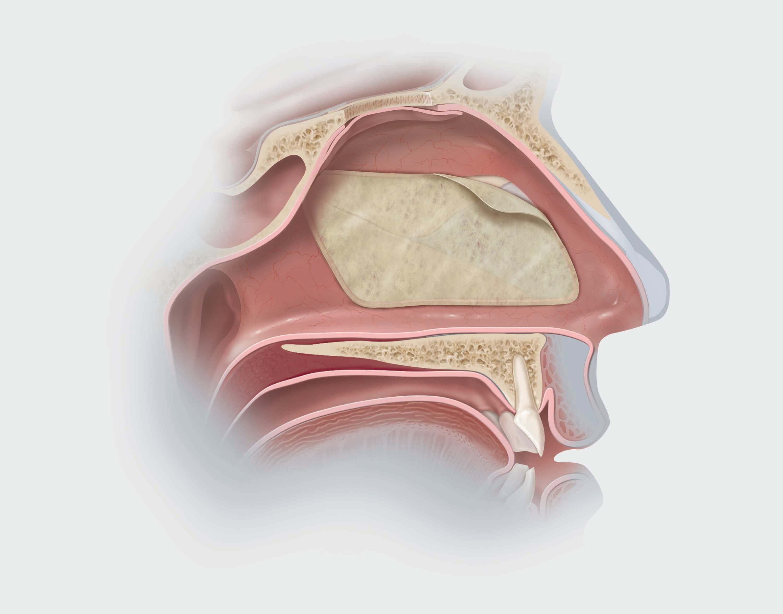 Biodesign Nasoseptal Flap