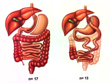 IFSO_blog_diagram2