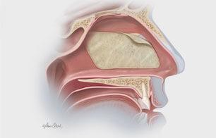 Sinus/Nasal Mucosal Repair