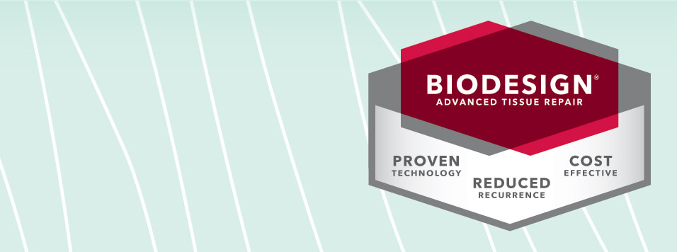 Move beyond to the next generation of biologic grafts