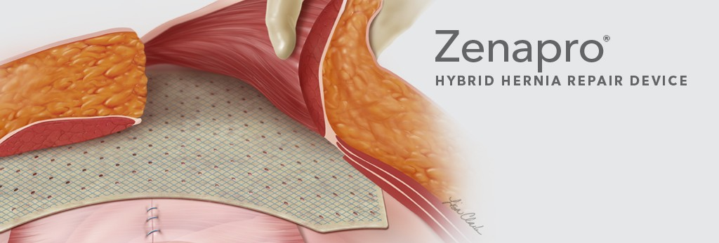 Zenapro