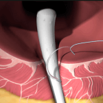Biodesign Anal Fistula Plug
