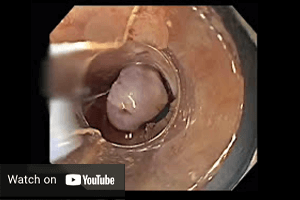 Cook Medical endoscopic mucosal resection (EMR) YouTube channel