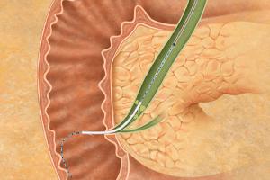Drain – endobiliary stenting