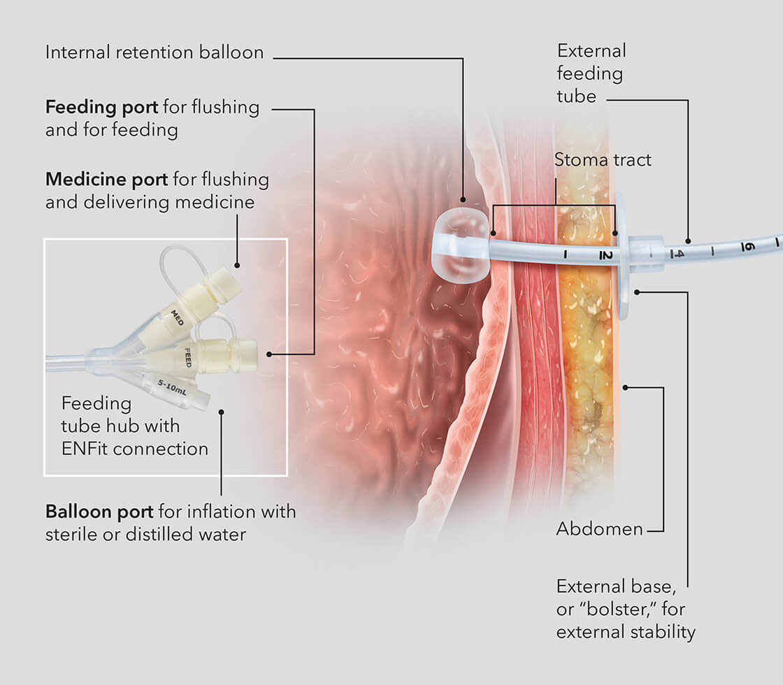 What is a balloon retention gastrostomy tube?