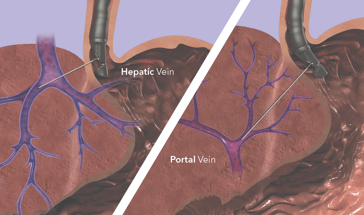 EchoTip Insight Vein Illustration